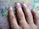 Mückenhand nach 5 Minuten_1559.JPG