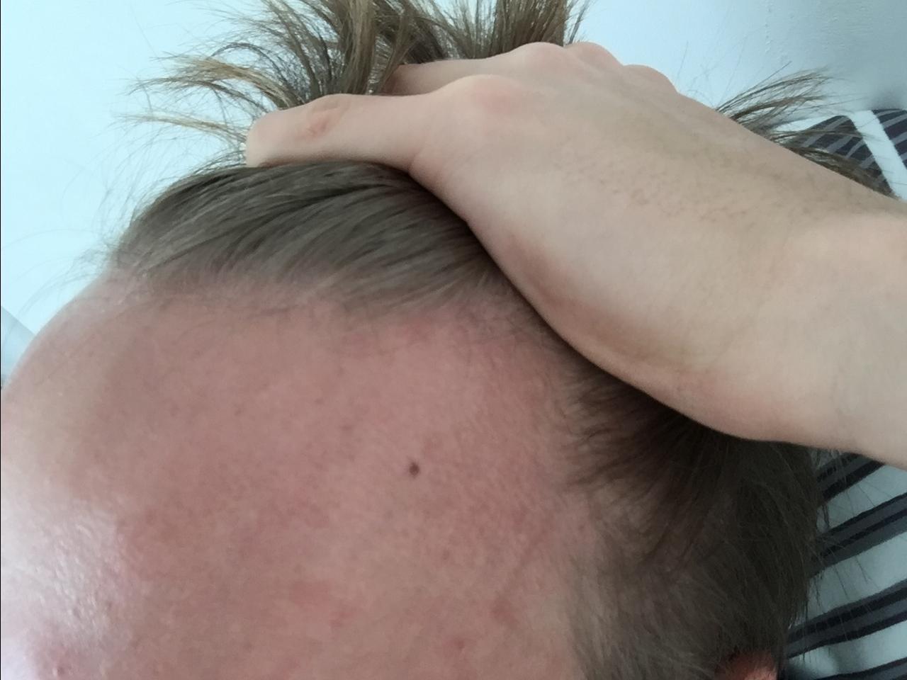Das Haar prolabiert nicht nur auf dem Kopf sondern auch den ganzen Körper